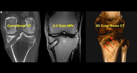 MRI-Cone-Beam CT