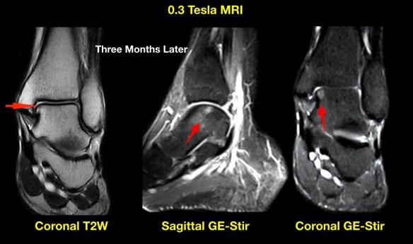 Talus Injury Monitoring