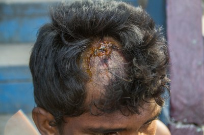 Injury on Diwakar's head, inflicted by police blows.