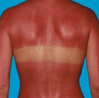 sunburn (5)
