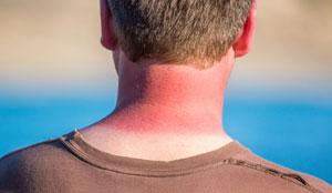 sunburn (6)