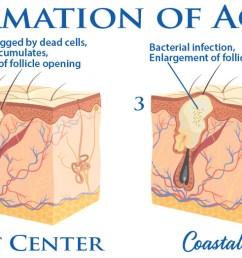 coastal valley dermatology carmel formation of acne photo [ 1600 x 523 Pixel ]