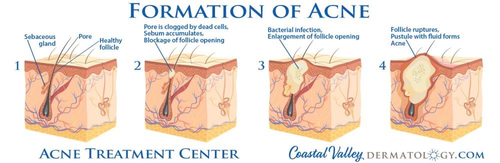 medium resolution of coastal valley dermatology carmel formation of acne photo