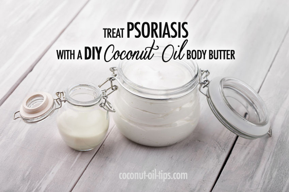 Coconut Oil Psoriasis Remedy