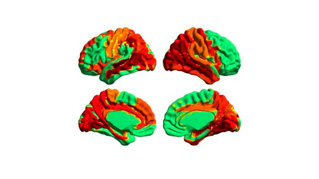 La ciencia confirma que consumir LSD puede producir un estado superior de consciencia