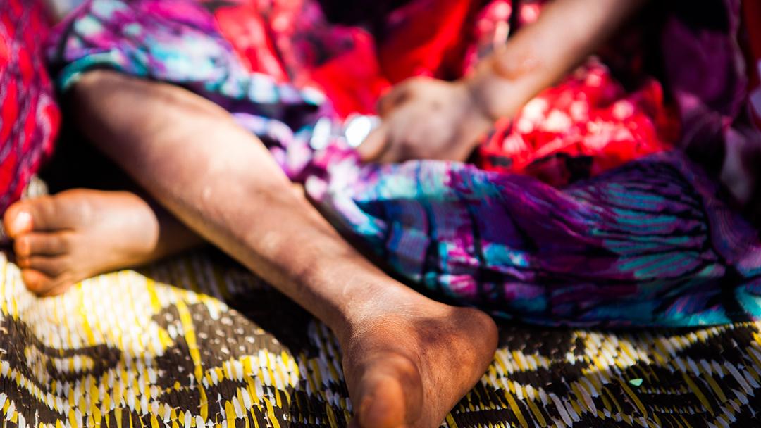 Poliomelitis en África