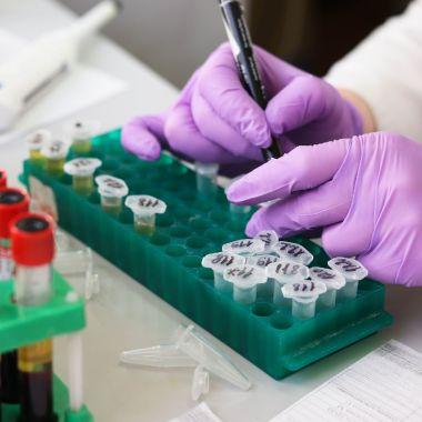 Prueba Laboratorio Casera Digital Coronavirus