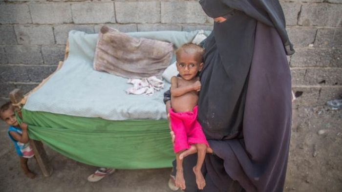 El hambre y la guerra afectan principalmente a los niños