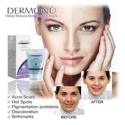 Acne Removal Cream in Pakistan