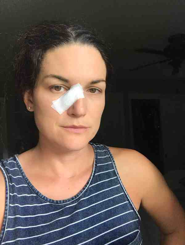 My Experience with the Mohs procedure #skincancer #basilcell #moles