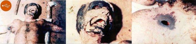 Mutilation human