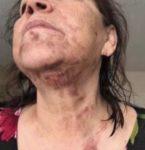 Mamá de Jenni y Lupillo Rivera sufre quemaduras en accidente doméstico