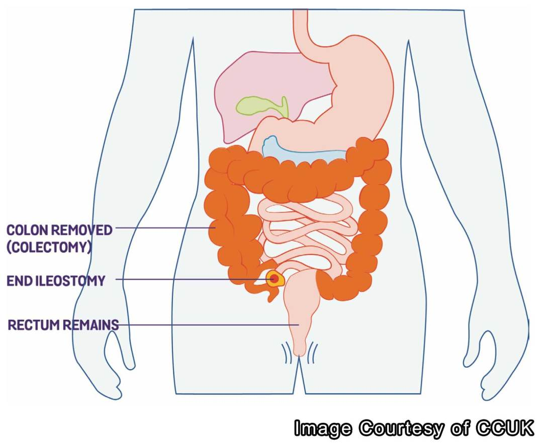 colectomy, ulcerative, colitis, subtotal, operation