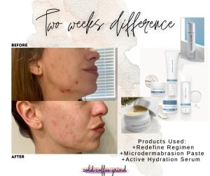 Skincare Products: Before and After