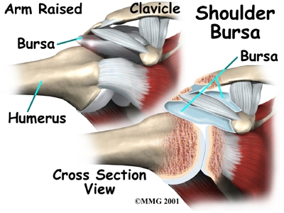 By Any Other Name It\'s Still Bursitis | Cole Pain Therapy Group