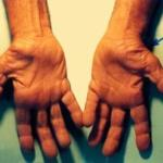 Diagnosis and Treatment of Carpal Tunnel Syndrome