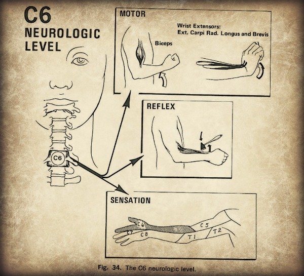 Cervical Radiculopathy neurological signs