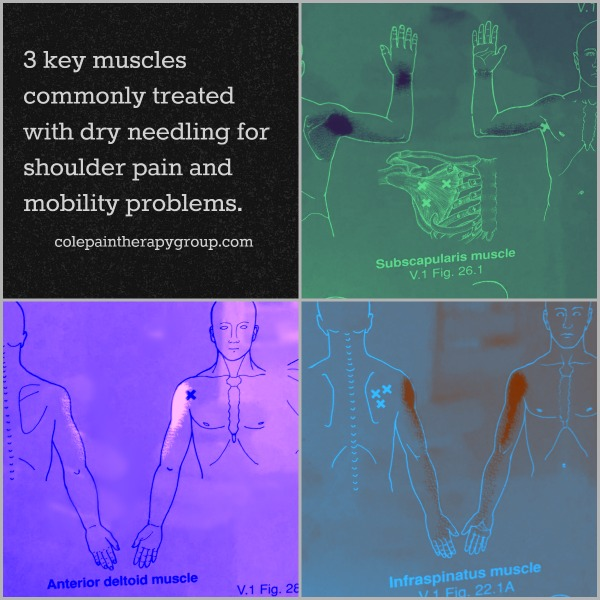 3 key muscles commonly treated with dry needling for shoulder pain and mobility problems.