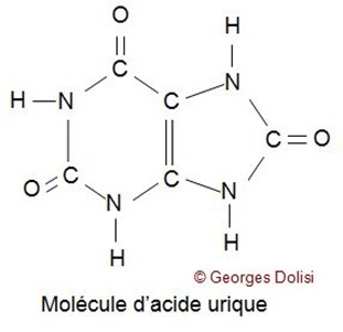 calcul rénal_calcul acide uriqueJPG