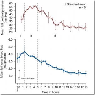 phase et durée colique néphrétique