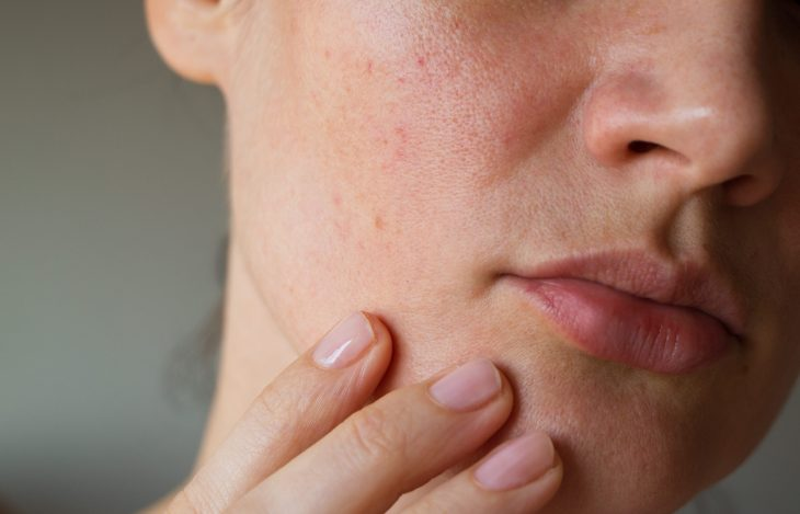 Closeup picture of a ladies lower half of her face with her fingers touching her skin