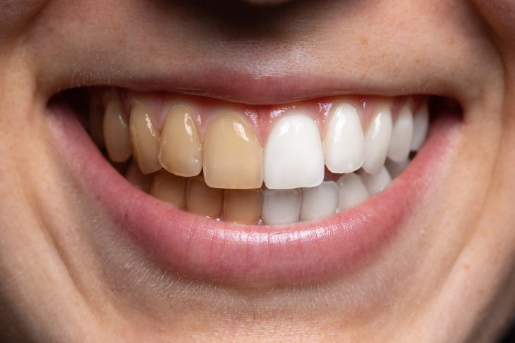A picture of teeth and half are yellow half are white.