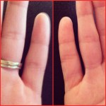 Day 18: Something We Don't Know About You. I have an extra fold on my right pinkie.