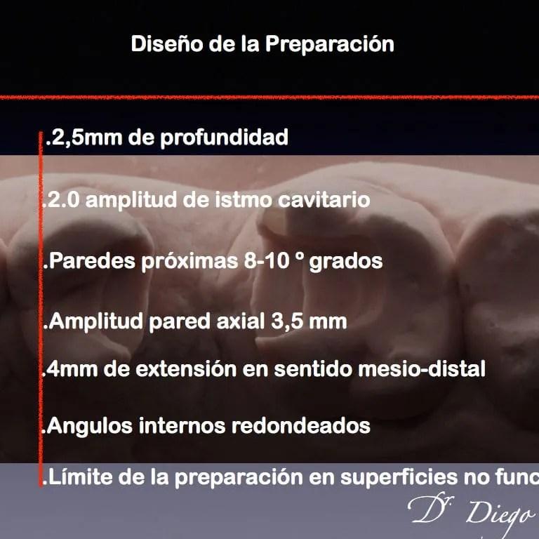 Diseño de la preparación