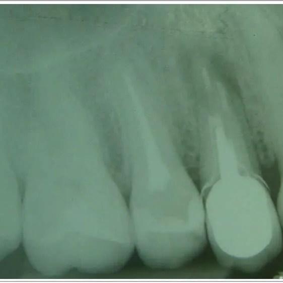 F.1 Radiografía preoperatoria