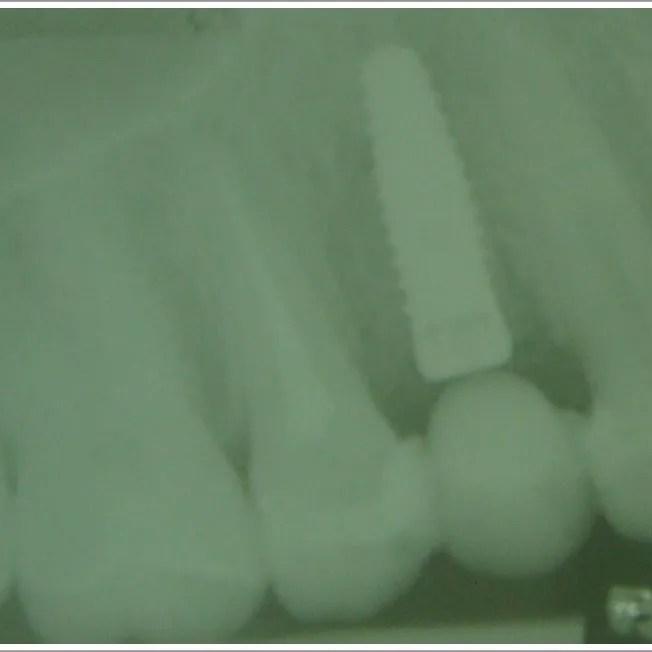 Fig.8 Radiografía postoperatoria.