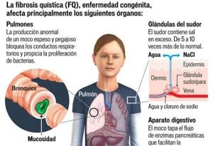 fibrosisquistica