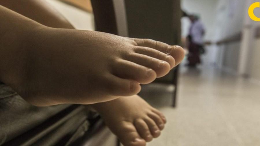 eutanasia colombia menores de edad corte constitucional
