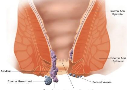Legatura elastica e sclerosi delle emorroidi