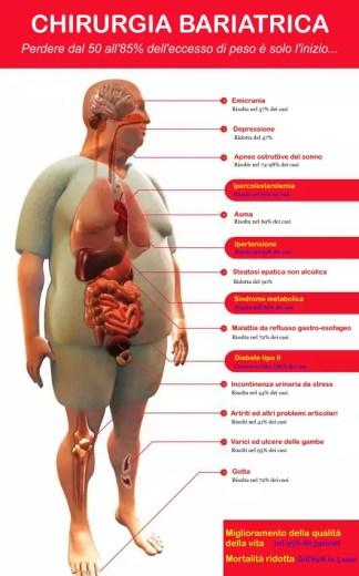 obesità, perdere peso è solo l'inizio