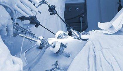 Ernia inguinale recidiva? meglio la laparoscopia