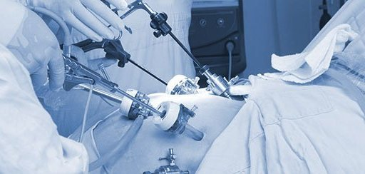 ernia inguinale recidiva in laparoscopia