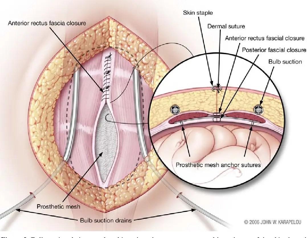 Chirurgia endoscopica per la diastasi dei retti: quale tecnica?