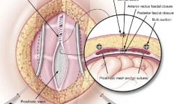 tecnica di Rives, chirurgia endoscopica per la diastasi dei retti
