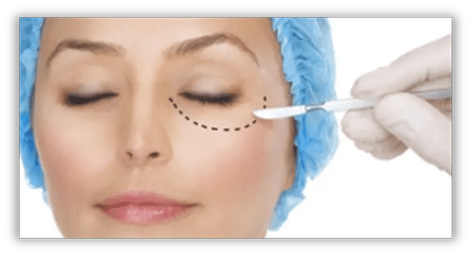 chirurgia ambulatoriale, dermochirurgia, nevo, fibroma pendulo, verruca, cisti sebacea, lipoma, chirurgia LASER, circoncisione, frenulocorto