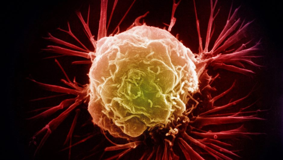 Cancer Center Trial Takes Aim at  Treatment-Resistant Tumors