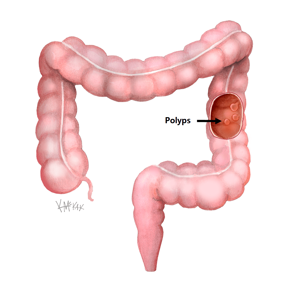 hight resolution of a polyp is an abnormal growth or projection from the mucosal surface or lining of the bowel wall a polyp typically has the appearance of a small