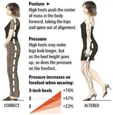Poor dorsiflexion posture