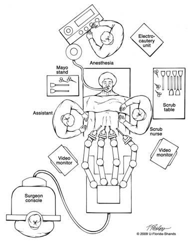 Robotic Nerve-sparing Radical Prostatectomy » Department