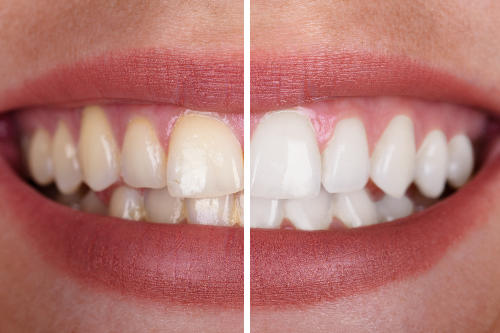 What's the best type of teeth whitening?