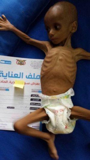 YemenFood1-20171127