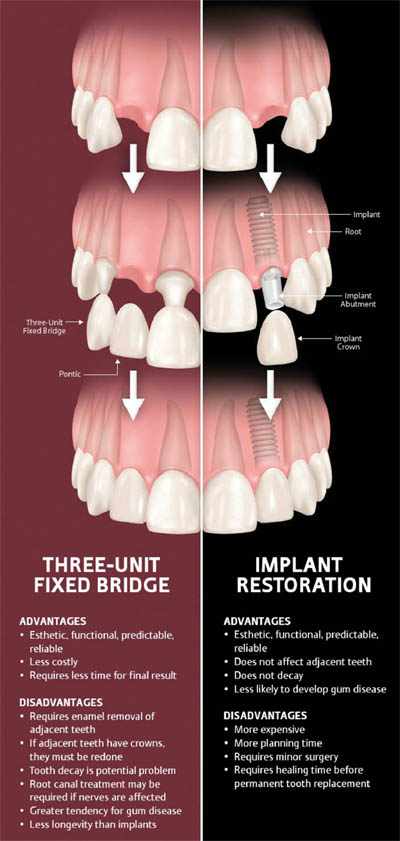 Dental implants vs dental bridge