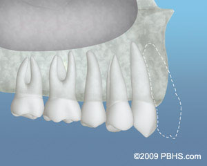 An example of a jaw with inadequate front bone structure to support an implant