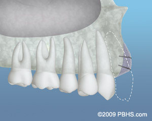 A depiction of the placed bone grafting material to increase the bone structure