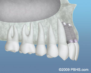 A representation of dental implants placed after bone grafting