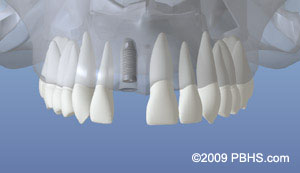 An digital representation of the initial dental implant placed in the jaw bone